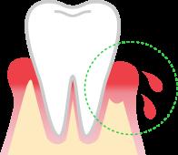 My gums are bleeding!