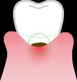 I've got cavities in receding gum spots!