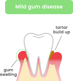 Mild gum disease