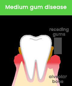 Medium gum disease