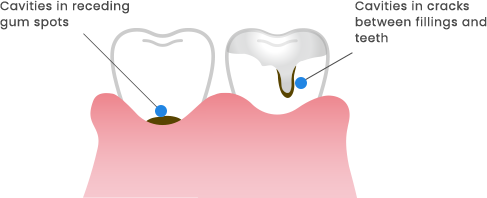 Cavities in receding gum spots/Cavities in cracks between fillings and teeth