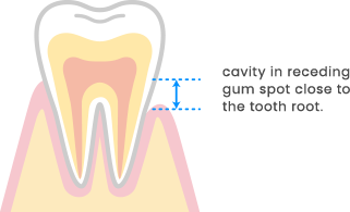 cavity in receding gum spot close to the tooth root.