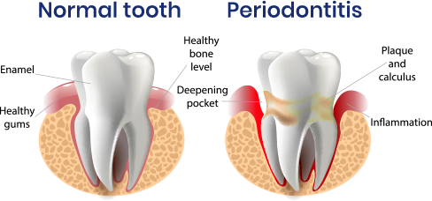 Normal toooth / Periodontitis