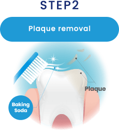 STEP2 Plaque removal