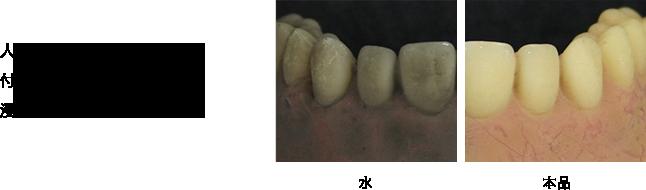人工的にステインを 付着させた入れ歯を本品に 浸漬すると・・・